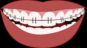 פלטה בשיניים