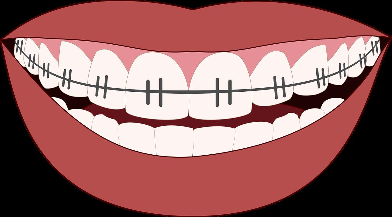 יישור שיניים למבוגרים: המידע המקיף