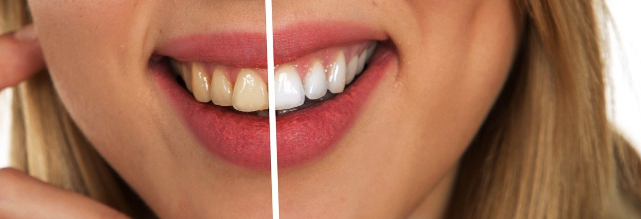 האם כאבי שיניים משפיעים על הבריאות הנפשית?