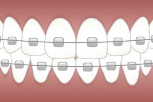 אילוסטרציה של שיניים עם גשר