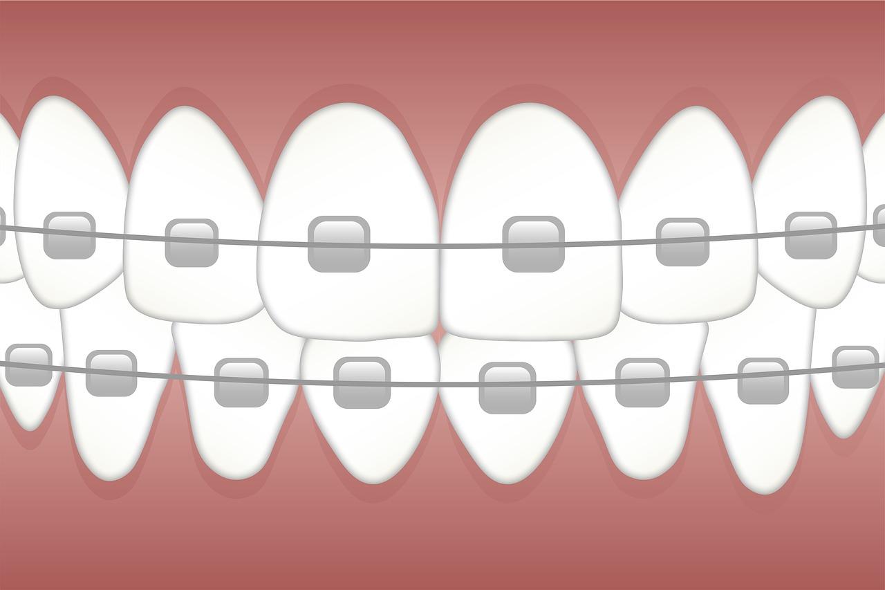 5דברים שחובה לעשות לפני התקנת גשר בשיניים